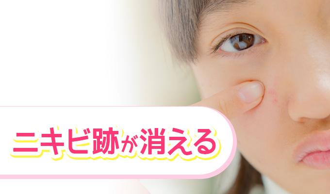 お酢洗顔が、ニキビに良い理由 ニキビ跡が消える